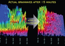 Relaxed Brain State after 15 minutes
